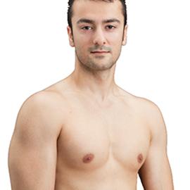 Diminution des seins chez les hommes